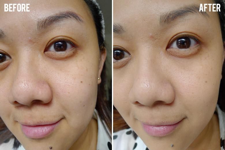 anti aging cream online
