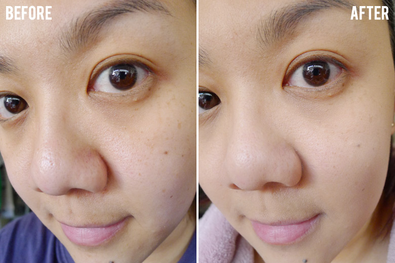 0acfec9d9e01 By Terry Cover Expert Perfecting Fluid Foundation Ultra Correcting Coverage  Before and After