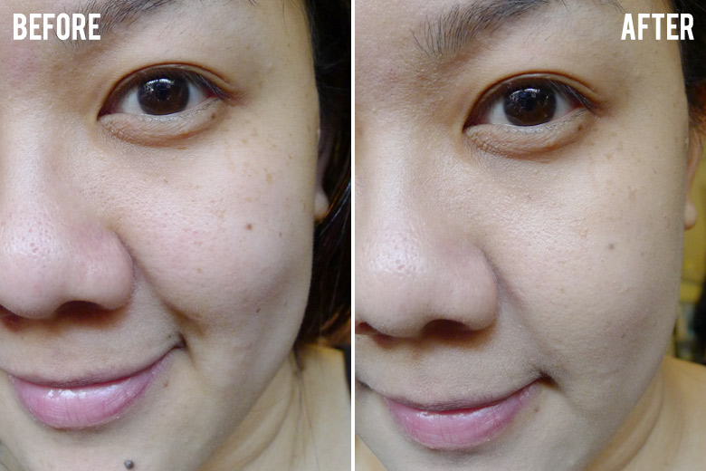 Clinelle Miracle Aqua Capsule EE Even Effect Cream Before and After